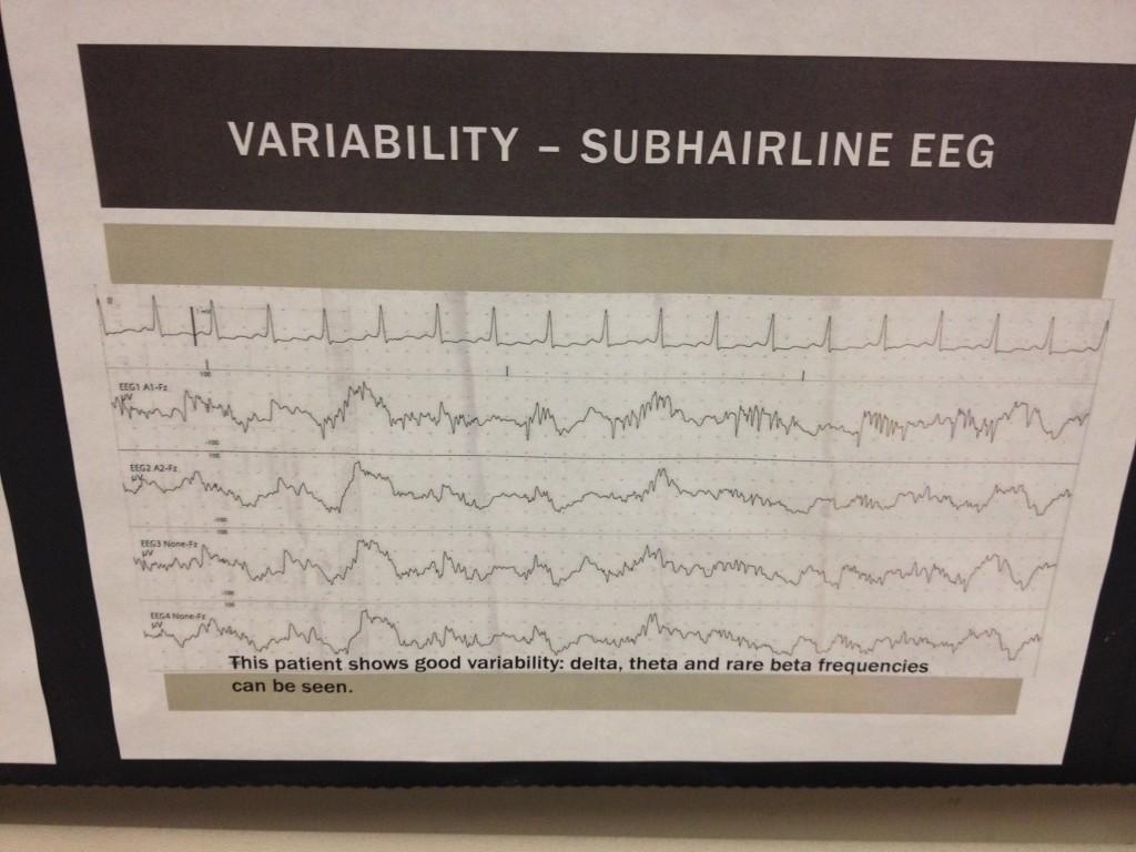 EEG-05