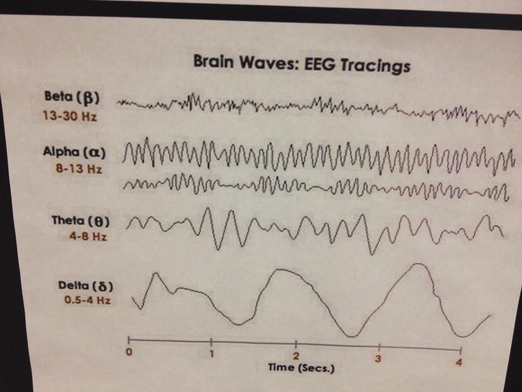 EEG-06