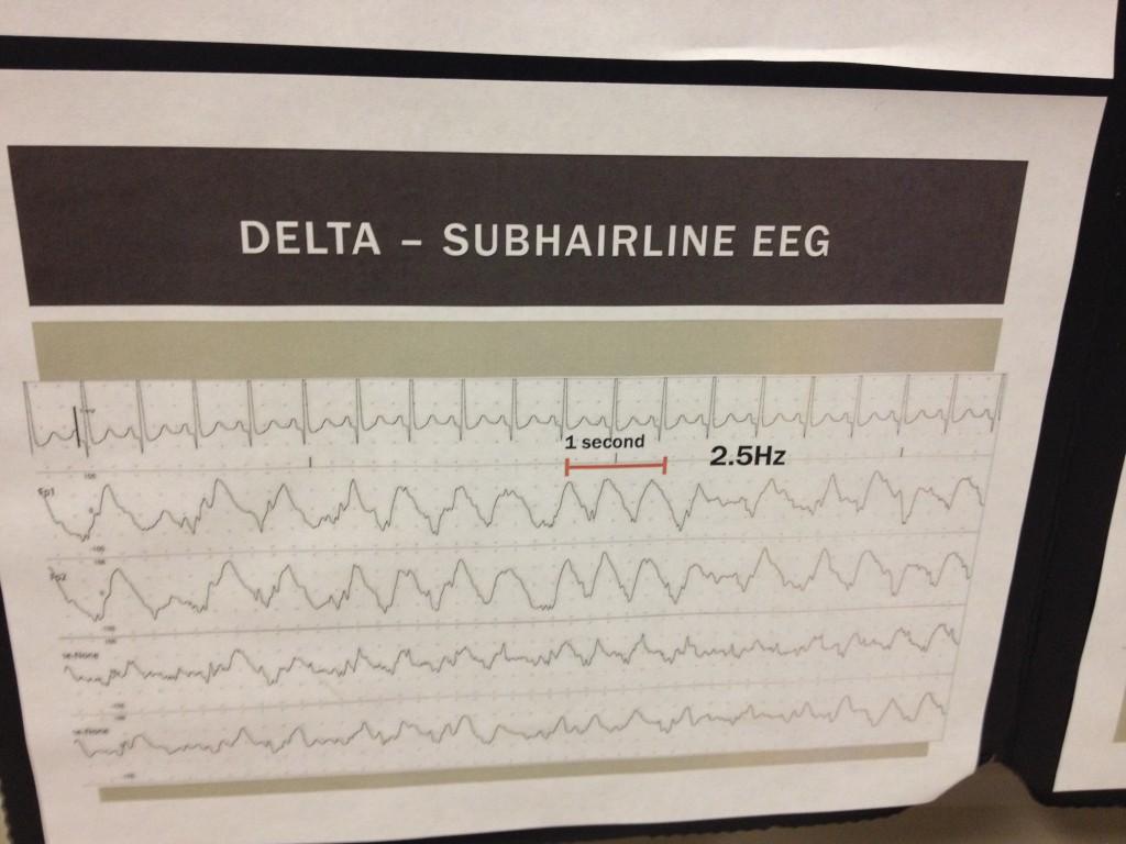 EEG-10